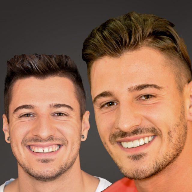 Veneers zur Wiederherstellung eines symmetrischen und harmonischen Lächelns