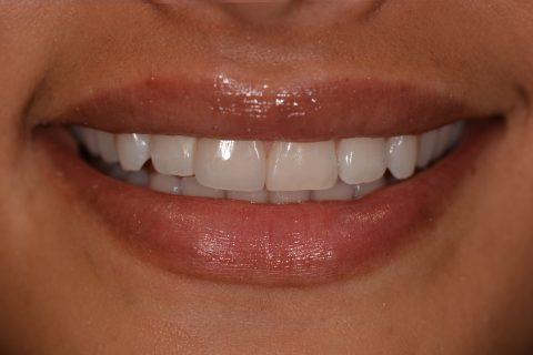 Zähne hübsches gesicht hässliche Hässliches gebiss,