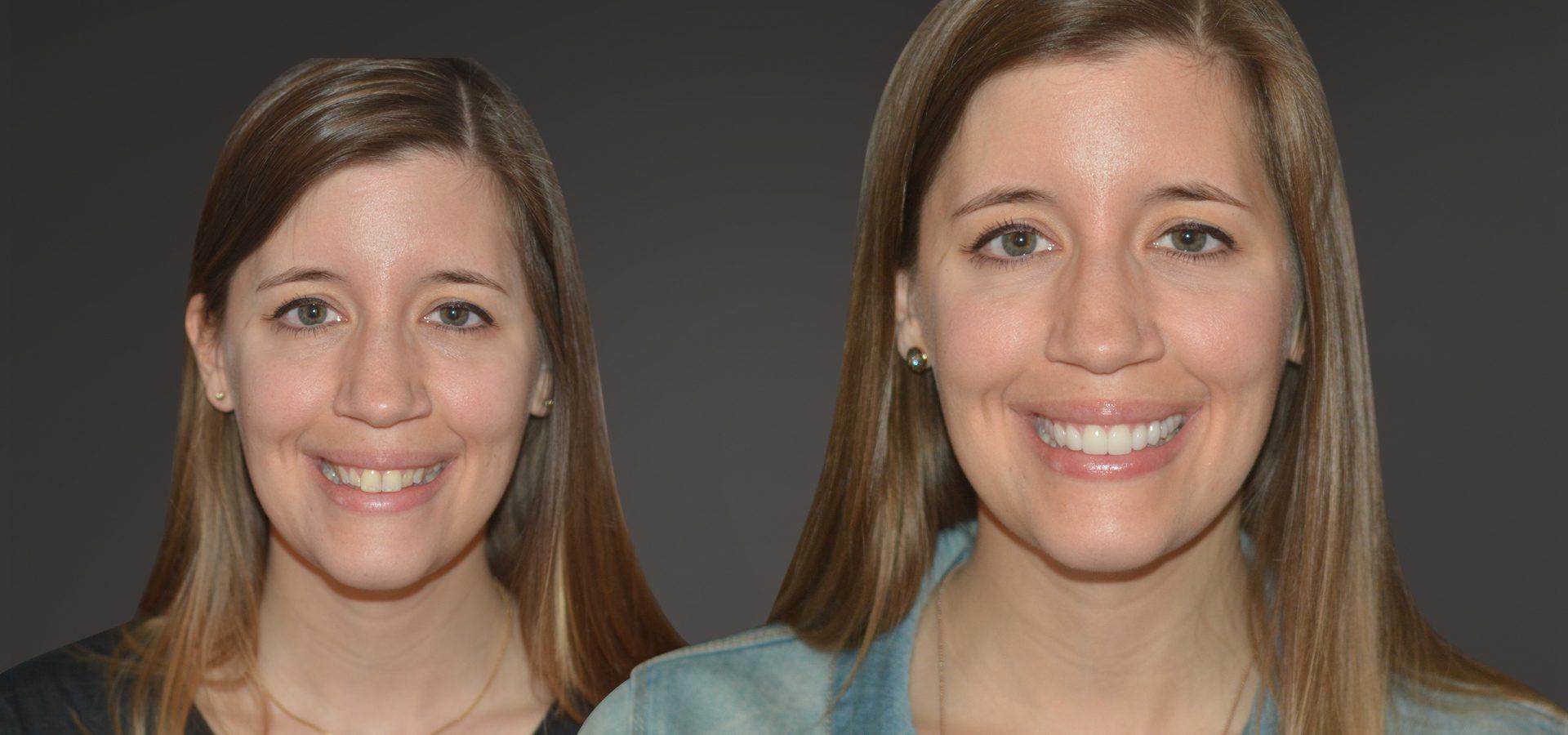 Veneers: schneller zu geraden, weißen Zähnen