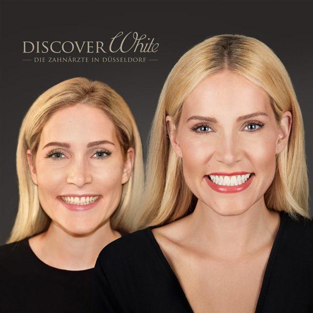 Smile-Design: Zahnverschönerung passend zu Ihrem Gesicht.