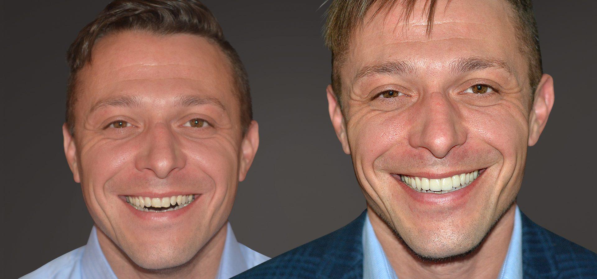 Veneers für ein strahlendes Lächeln und schöne Zähne in Düsseldorf