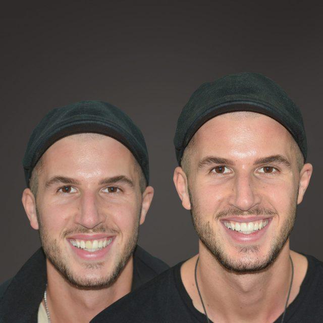 Für eine symmetrische Stellung der Zähne - Veneers
