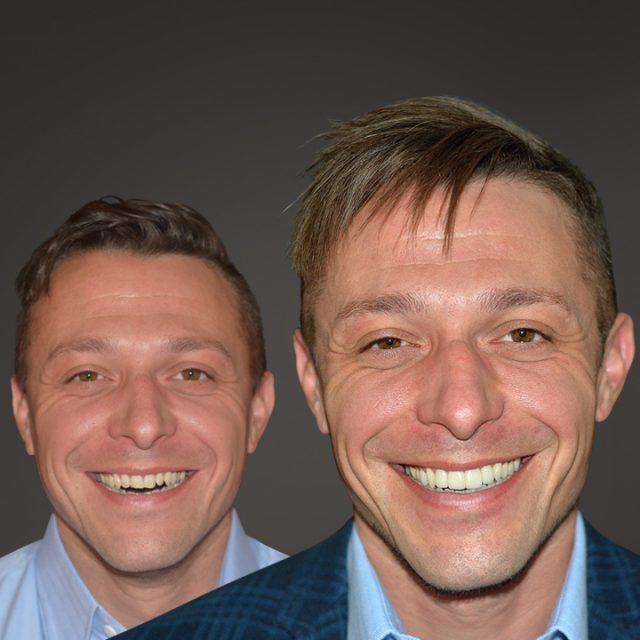 Gesundes Zahnfleisch, symmetrisch gleichmäßige Zähne dank Veneers