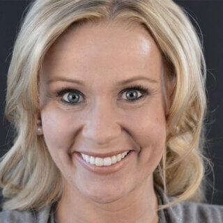 Zahnverschönerung passend zu Ihrer Gesichtscharakteristik dank Smile Design bei Discover White.