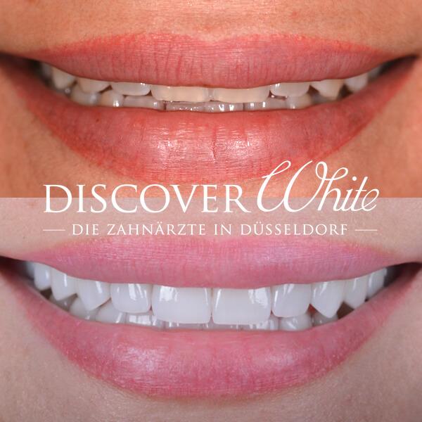 Wiederherstellung eines jugendlichen Lächelns im Sichtbereich der Frontzähne mittels Veneers.