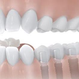 Passende Implantate für jeden Patienten.