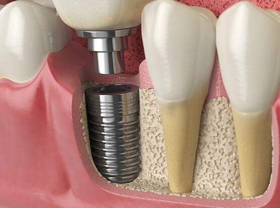 Ihr strahlendes Lächeln mit festen Zähnen könnte mit wenigen Implantaten verwirklicht werden.