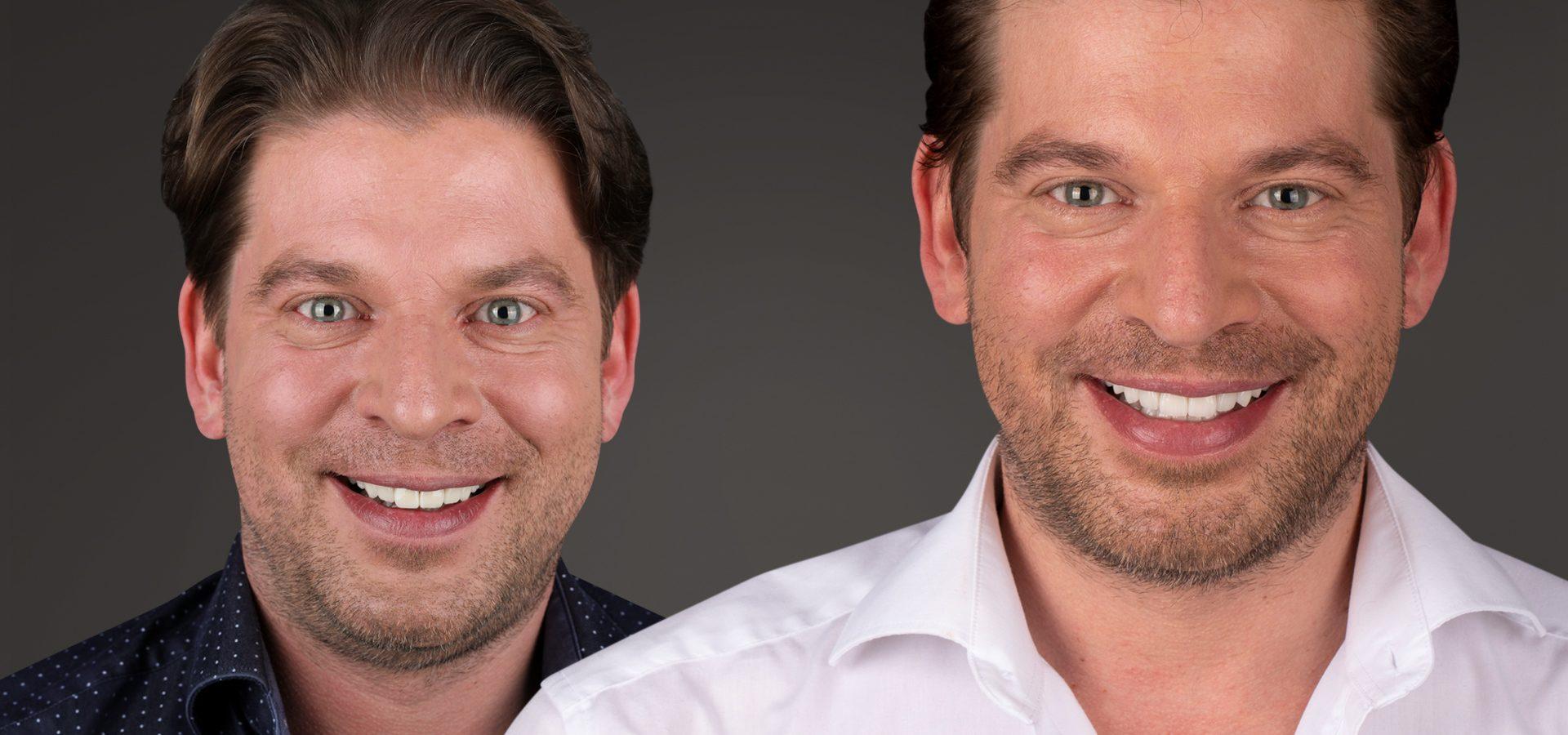 Mit Veneers zum Star-Lächeln: Zahnverschönerung für perfekte, strahlend weiße Zähne