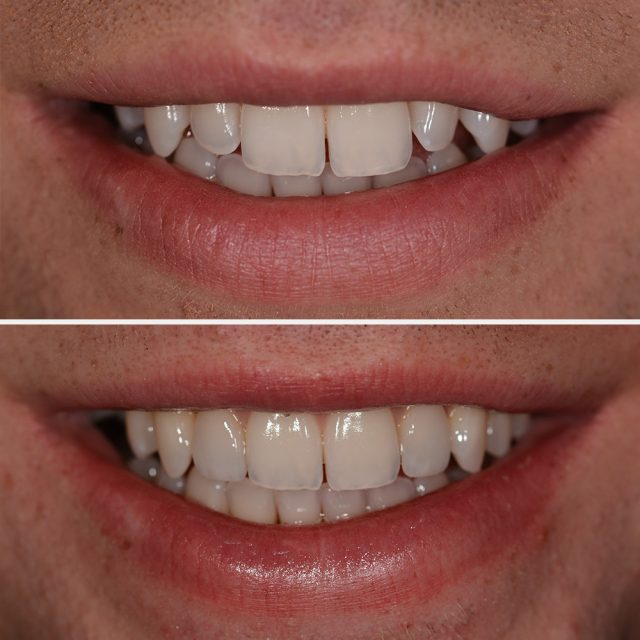 Mit Discover White Veneers können kleinere Lücken können geschlossen, Zapfenzähne korrigiert und die ursprüngliche Zahnlänge wiederhergestellt werden.