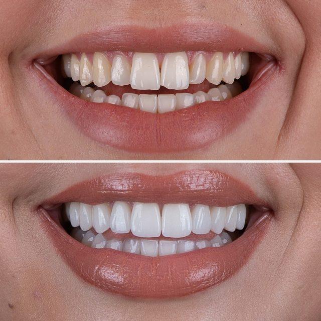 Keramik-Veneers können schiefe Zähne korrigieren oder begradigen