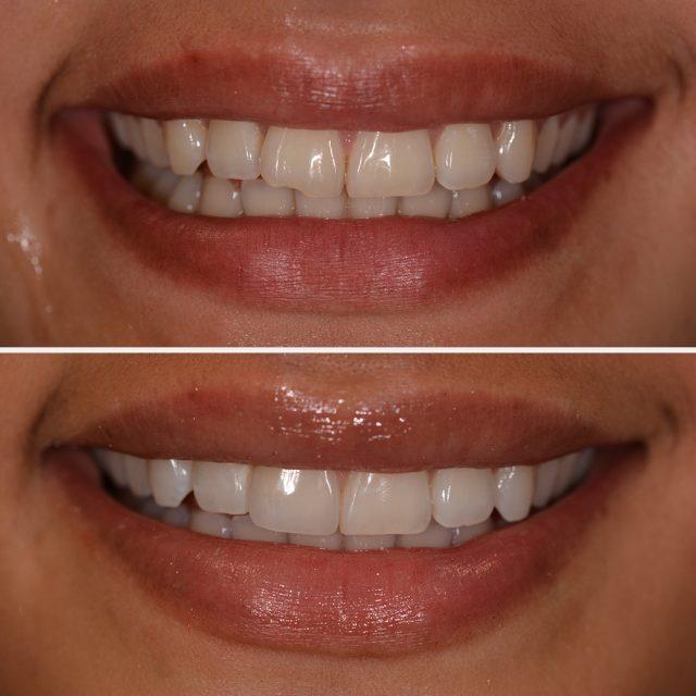 Keramik-Veneers können verfärbte Zähne dauerhaft aufhellen