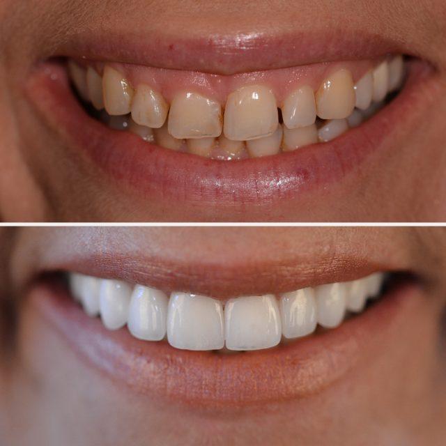 Keramik-Veneers können abgebrochene Zähne ausbessern und Lücken schließen.