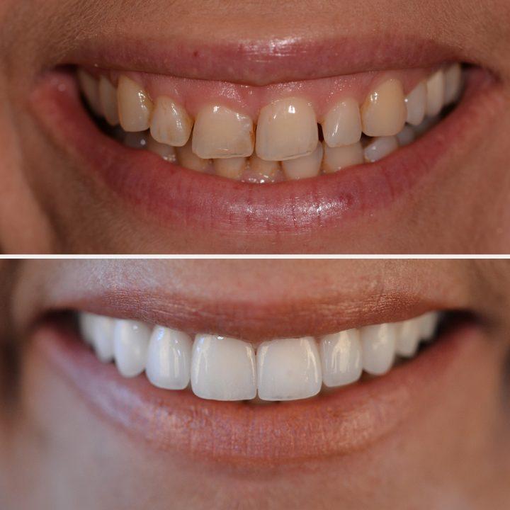 Keramik-Veneers könnenabgebrochene Zähne ausbessern