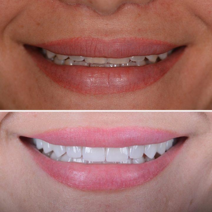 Keramik-Veneers könnenunschöne Zahnlücken oder Spalten schließen