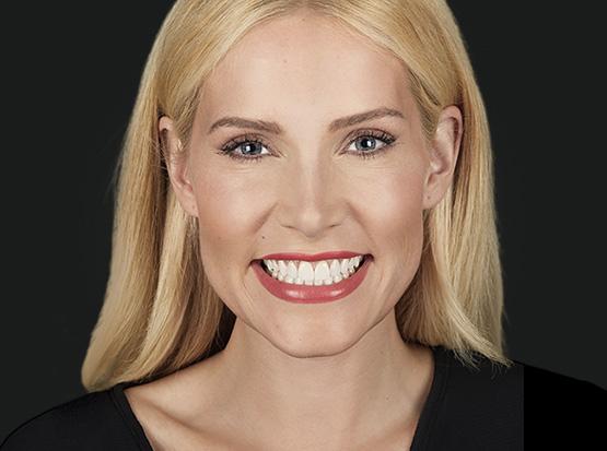 Ein strahlend weißes und makelloses Lächeln ist das Markenzeichen vieler Hollywoodstars.