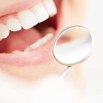 Zahnverschönerung für ein strahlendes Lächeln