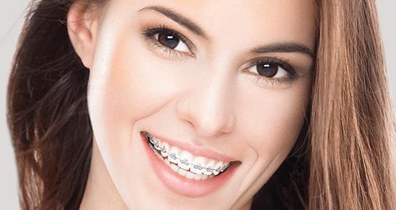 Gerade Zähne mit einer unsichtbaren Zahnspange.