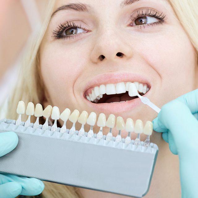 Schonende Zahnaufhellung Home-Bleaching
