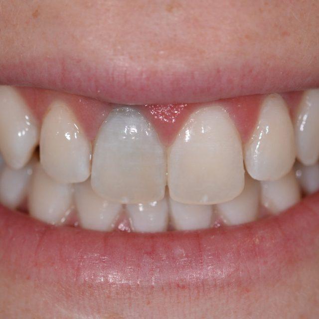 Wir bieten Ihnen das komplette Spektrum ästhetischer Zahnheilkunde an: Von Bleaching bis hin zu Veneers.