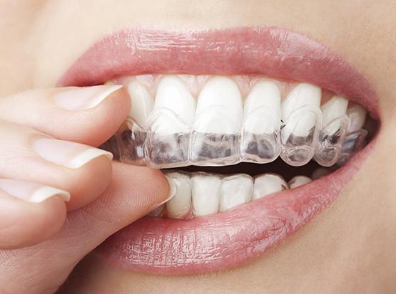 Unsichtbare Zahnspange – Die elegante Lösung bei Zahnfehlstellungen