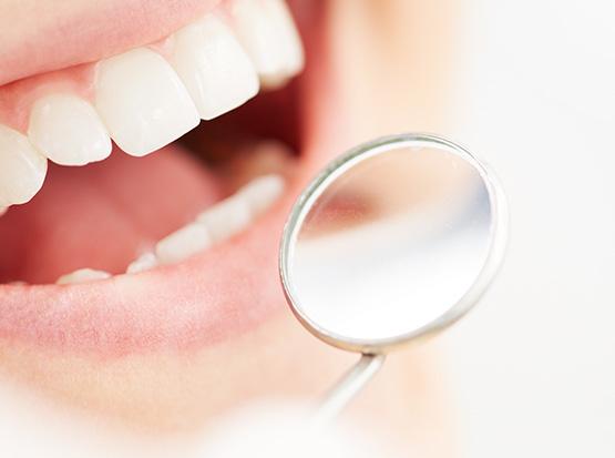 Verfärbte Zähne können durch Bleaching-Verfahren professionell und schonend aufgehellt werden.