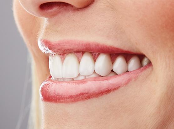 Gerade, helle Zähne und ein gesundes Zahnfleisch sorgen für das schönste Lächeln und für einen strahlenden Auftritt.