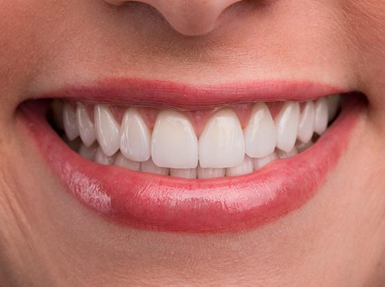 Durch die Verlängerung der Frontzähne kann die negative Lachlinie in eine positive umgewandelt werden.