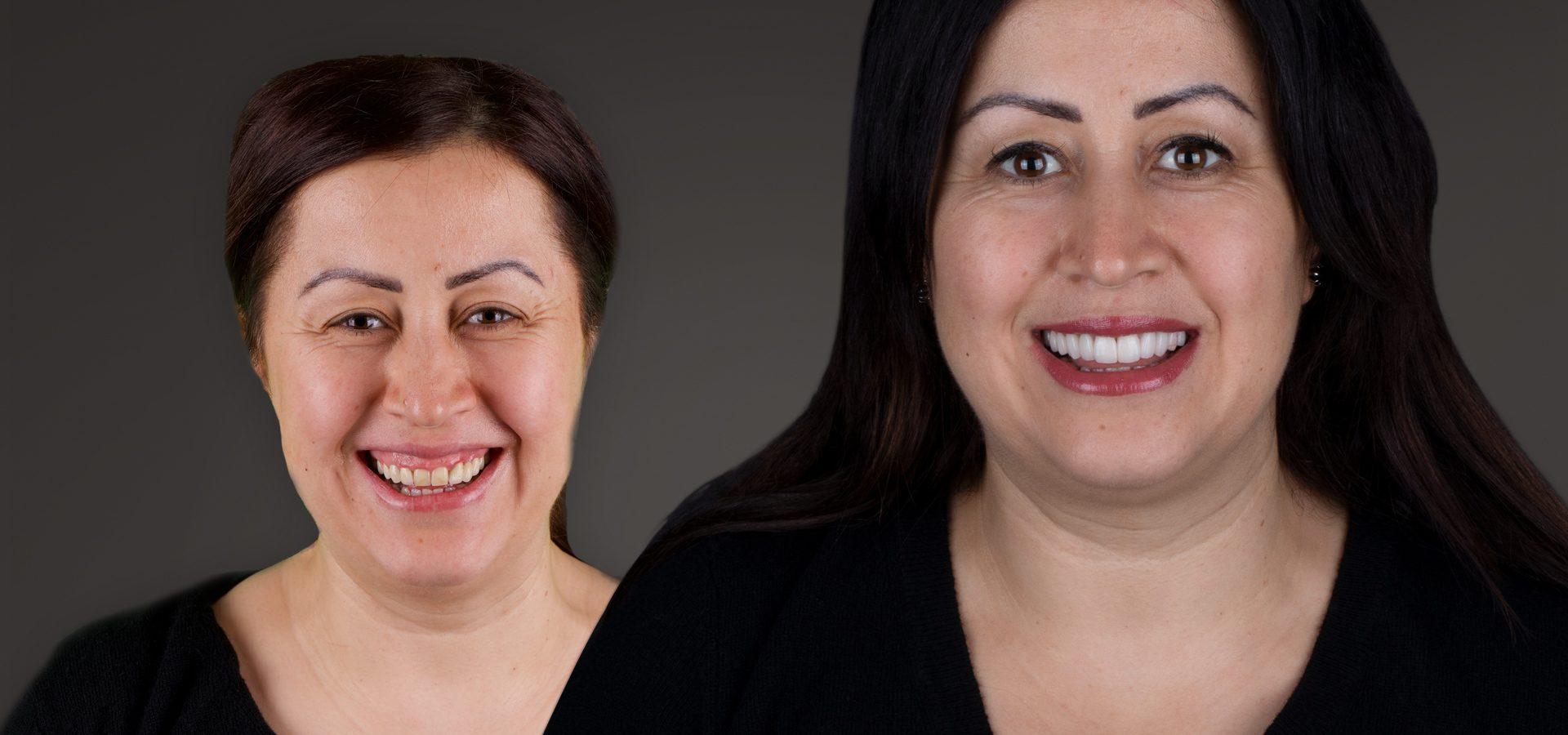 Unsere ästhetische Zahnbehandlung verbessert die Schönheit Ihrer Zähne