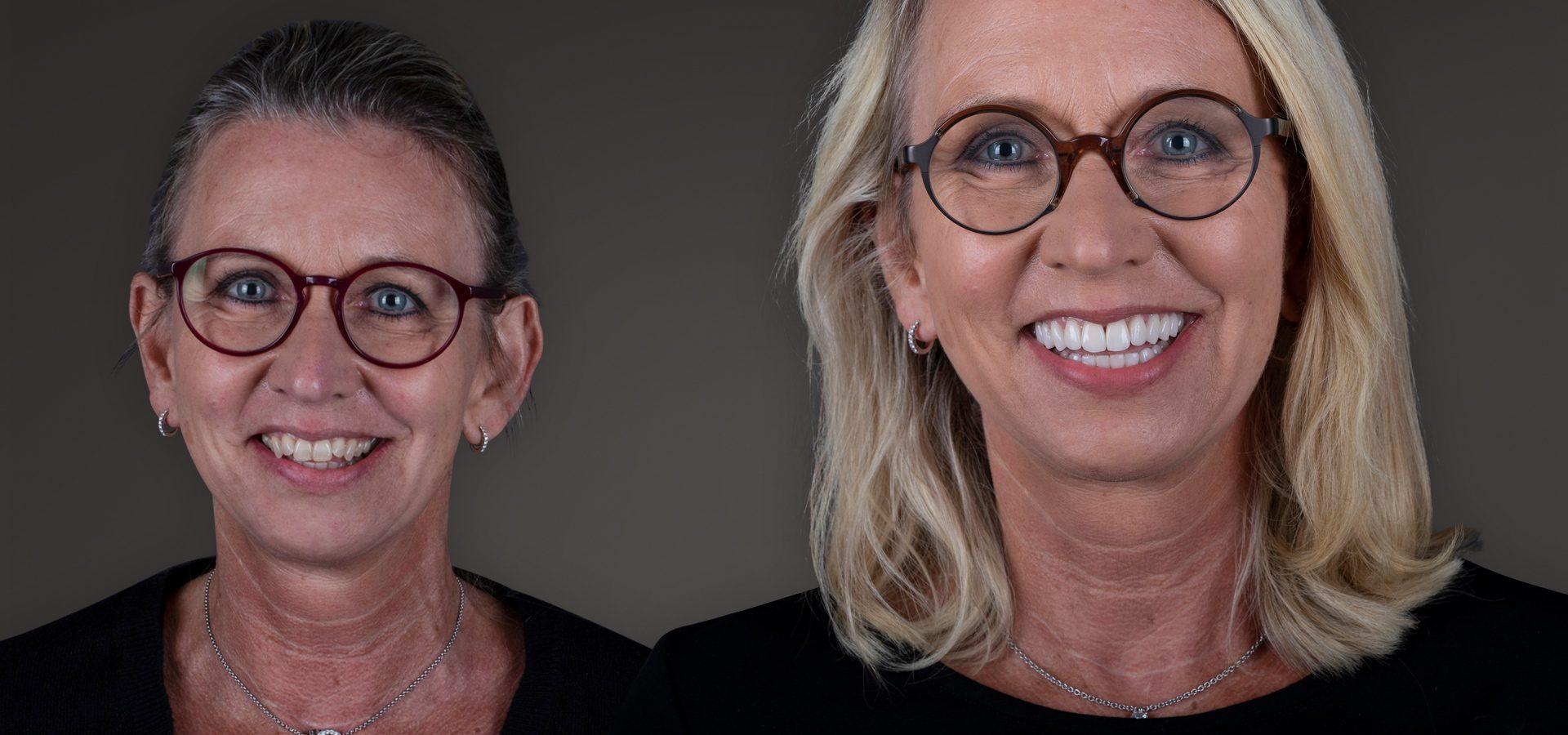 Mit Veneers zum Star-Lächeln: Zahnverschönerung für perfekte, strahlend weiße Zähne ohne Bohren, ohne Abschleifen der Zahnsubstanz