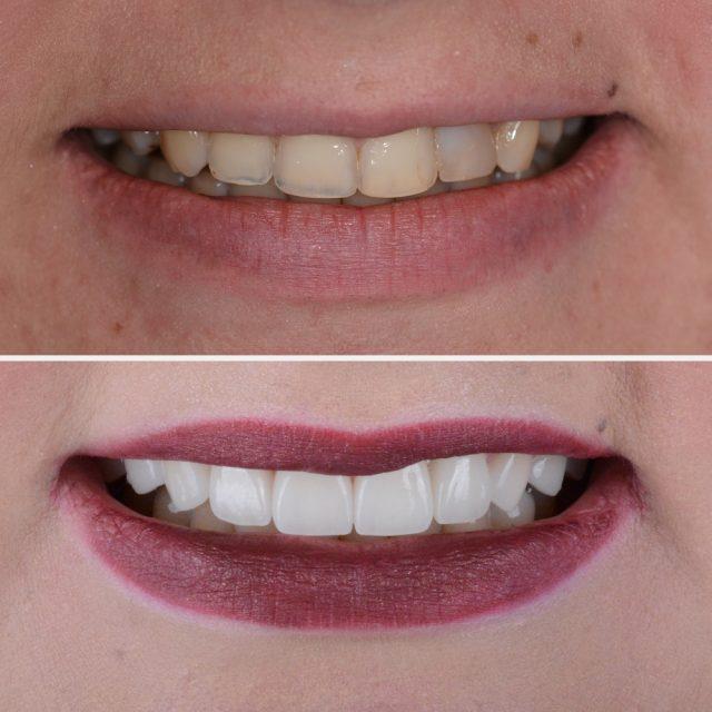 Wiederherstellung eines jugendlichen Lächelns im Sichtbereich der Frontzähne mittels Veneers