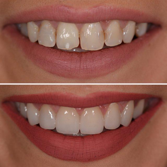 Zahnverfärbungen: Schluss mit gelben Zähnen - dank Veneers!
