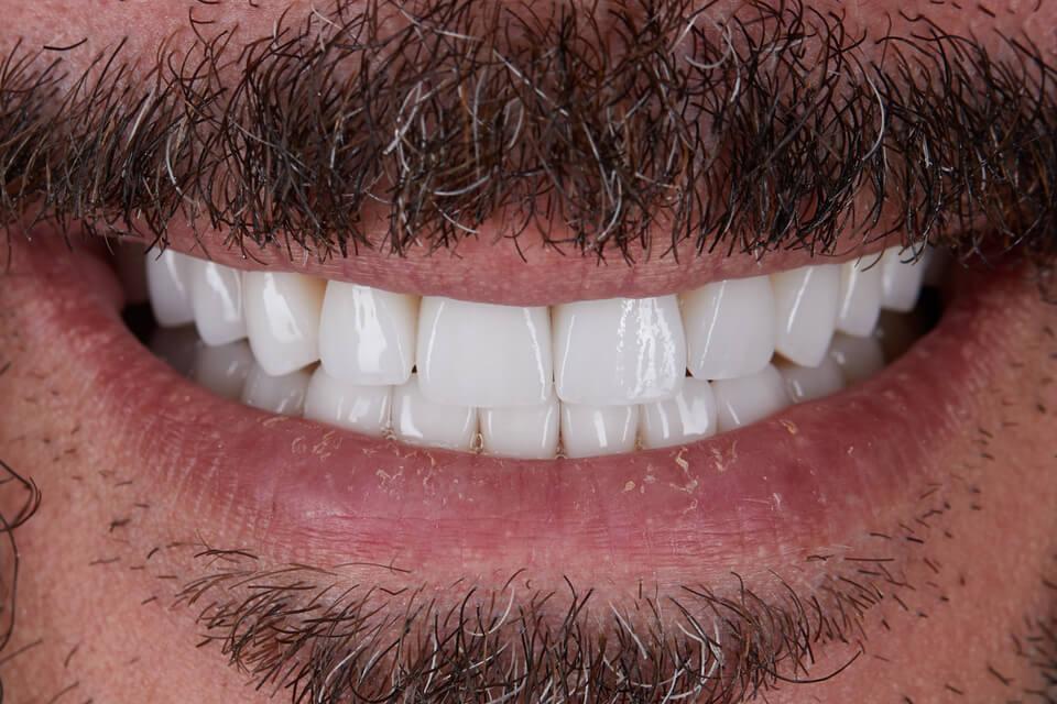 Zähne Werden Immer Gelber