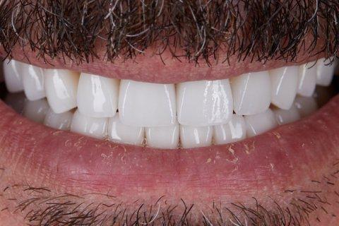 Zähne hässliche Krone aus